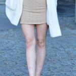Julia Wróblewska zaprezentowała nogi. Pojawił się pewien problem...