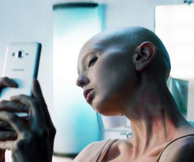 Justyna Wasilewska: Bez włosów, brwi i rzęs