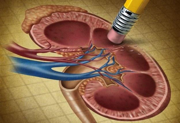 Już niebawem nerki będą bezpieczne podczas operacji? /123RF/PICSEL