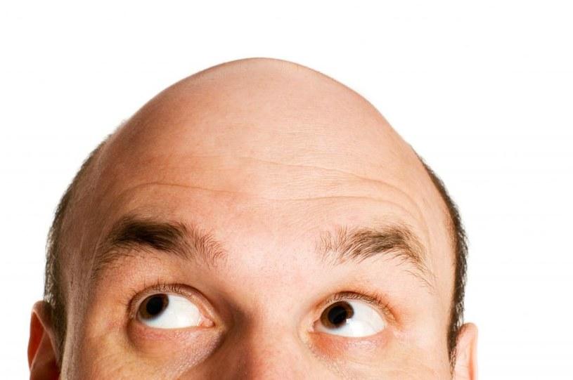 Już wiadomo jakie są przyczyny łysienia /123RF/PICSEL