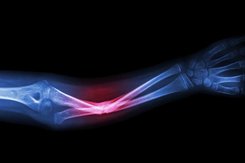 Już wkrótce leczenie złamań będzie dużo skuteczniejsze /123RF/PICSEL