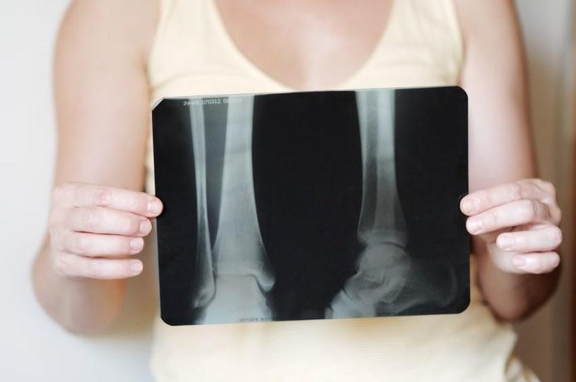 Już wkrótce może się udać pokonać osteoporozę /123RF/PICSEL