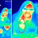 Kamera termowizyjna pomogła wykryć raka u 41-latki