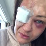 Karolina Kowalkiewicz ma po gali UFC poważne problemy z okiem
