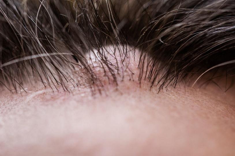 Kaszak na skórze głowy /©123RF/PICSEL
