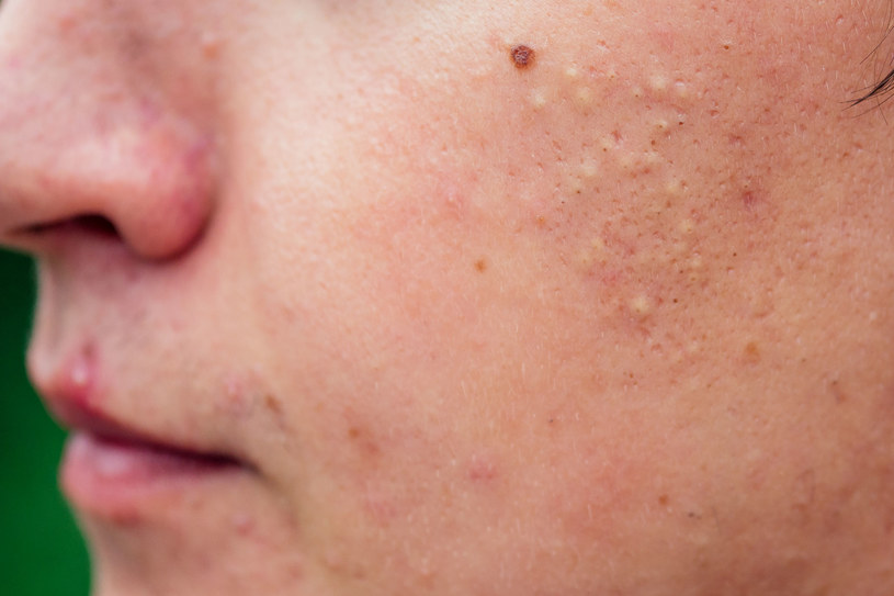 """""""Kaszka"""" na twarzy może być spowodowania przez wiele czynników /123RF/PICSEL"""