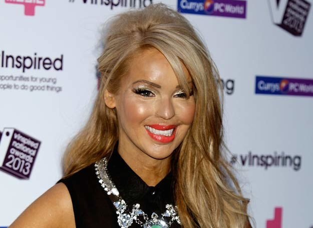 Katie Piper /Getty Images