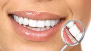 Każdy ząb warto ratować