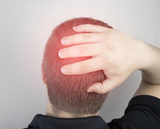Kiedy ból głowy może być niebezpieczny? /©123RF/PICSEL