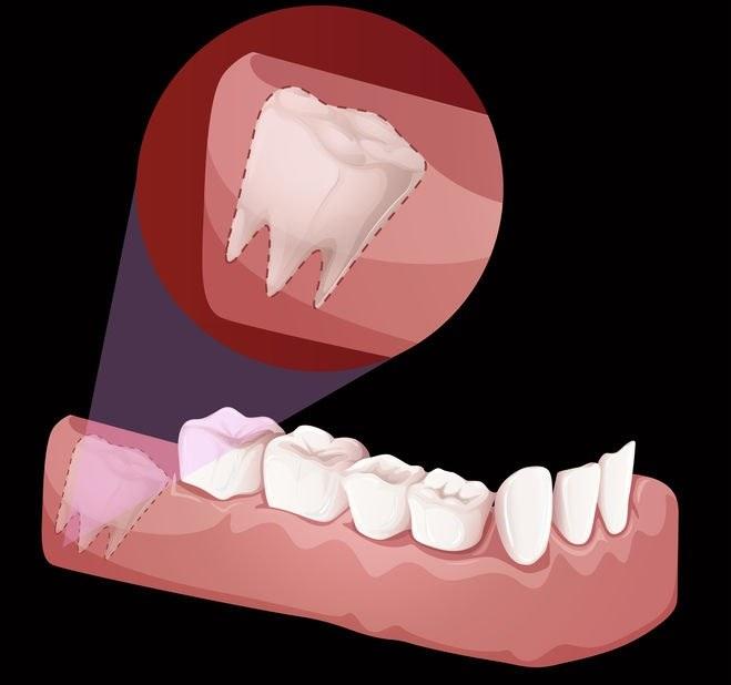 Kiedy powinno się usuwać zęby mądrości? /©123RF/PICSEL