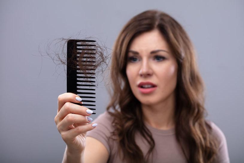 Kiedy wypadanie włosów może być groźne? /©123RF/PICSEL