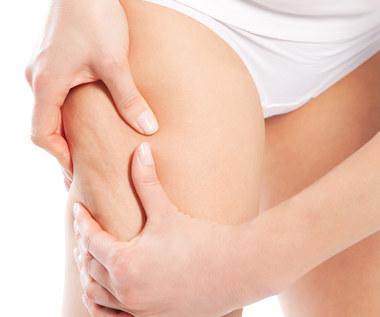 Kilka sposobów aby skutecznie pozbyć się cellulitu