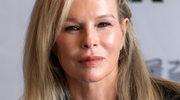 Kim Basinger przesadziła z botoksem?