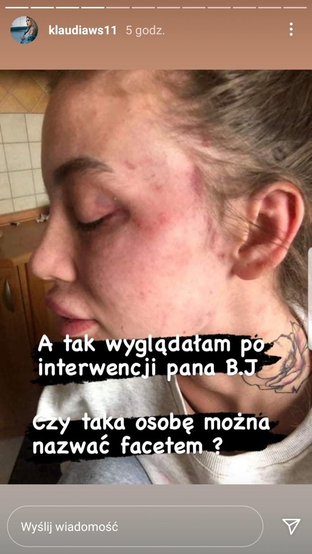 Klaudia podzieliła się wstrząsającymi zdjęciami   /https://www.instagram.com/klaudiaws11 /Instagram