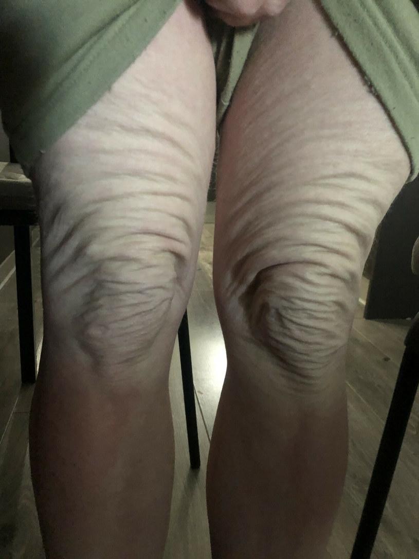 Kobieta chce dodać sił innym, zmagającym się z chorobą, dlatego pokazuje swoje zdjęcia /Jam Press/@bee.thebrave / SplashNews.com /East News