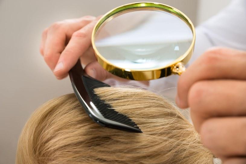 Kobiety skarżą się na łysienie tak często jak mężczyźni /123RF/PICSEL