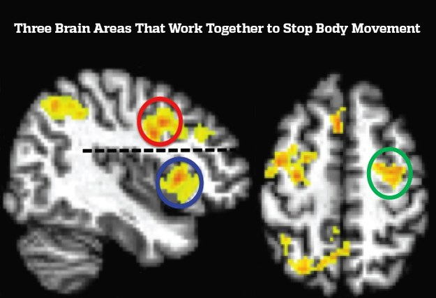 Kółeczkami oznaczono trzy rejony mózgu zaangażowane w zatrzymanie tego, co już rozpoczęliśmy /Johns Hopkins University /Materiały prasowe