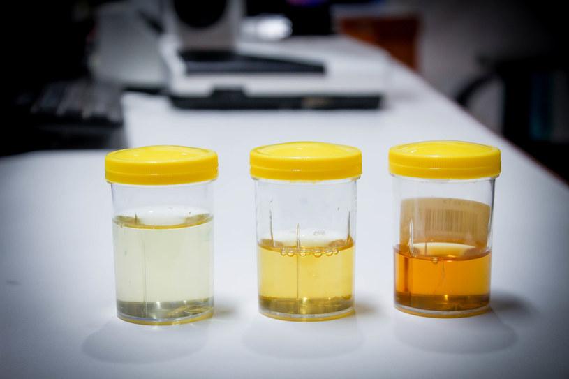 Kolor moczu wiele mówi o stanie nerek. Pozwala nam się też zorientować, czy pijemy odpowiedno dużo /123RF/PICSEL