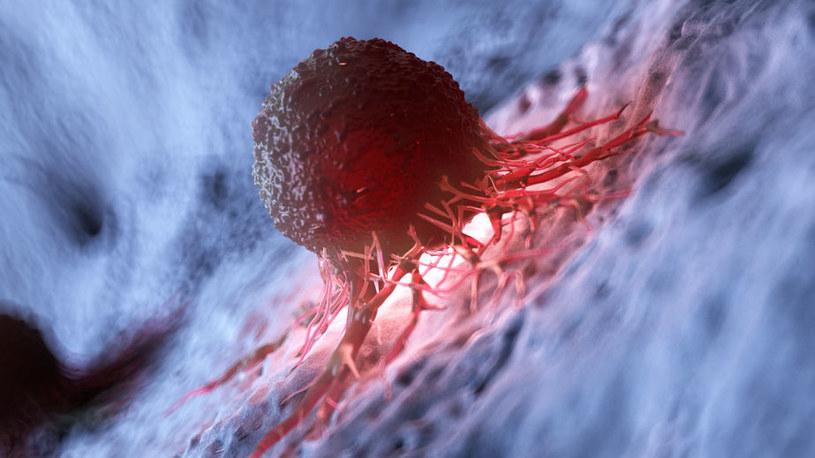 Komórka nowotworowa /©123RF/PICSEL