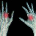 Komórki macierzyste idealne na złamania kości