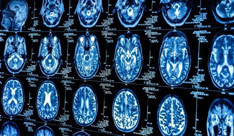 Komórki macierzyste pomogą w walce z guzami mózgu? /123RF/PICSEL
