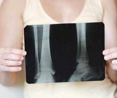 Komórki macierzyste sposobem na osteoporozę