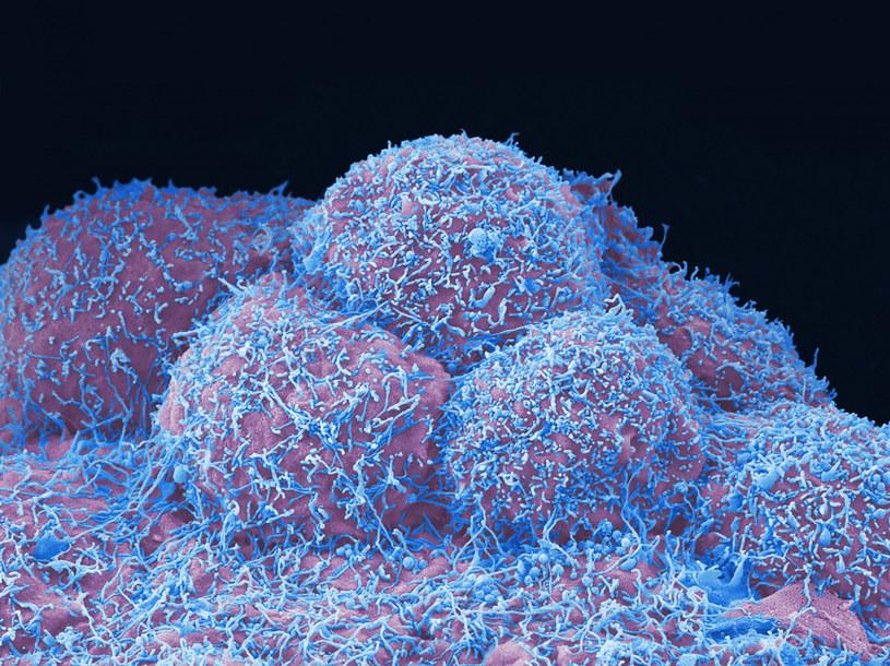 Komórki raka prostaty /Anne Weston, EM STP, the Francis Crick Institute/Science Photo L /East News