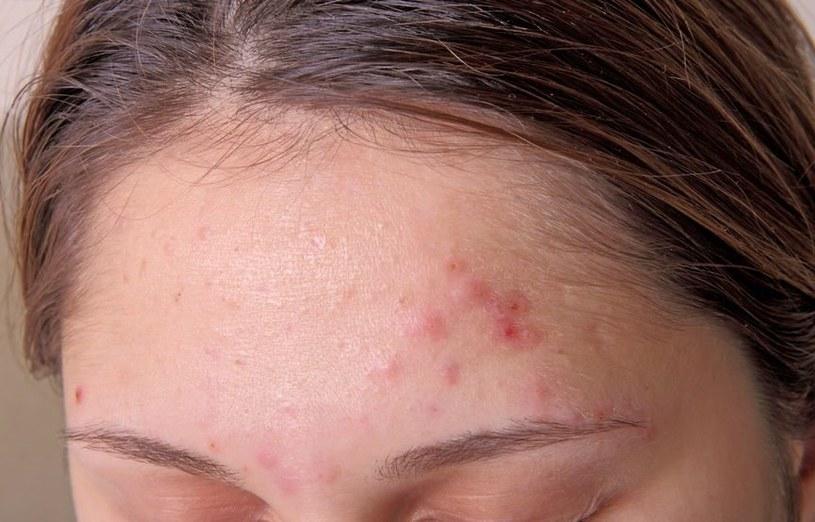Kondycja skóry wiele mówi o zdrowiu /123RF/PICSEL