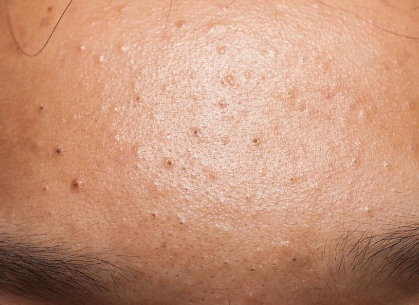 """Konsekwencją rozszerzonych porów są zaskórniki — brązowe lub czarne kropki występujące najczęściej w """"strefie T"""" (czoło, nos i broda) /123RF/PICSEL"""