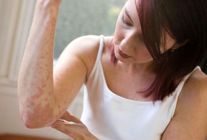 Kontaktowe zapalenie skóry /© Photogenica