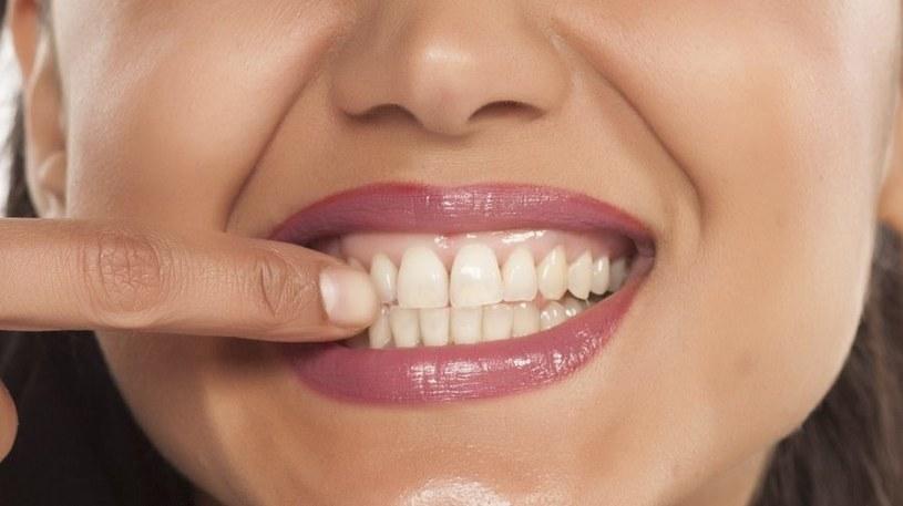 Kontroluj stan zębów /123RF/PICSEL