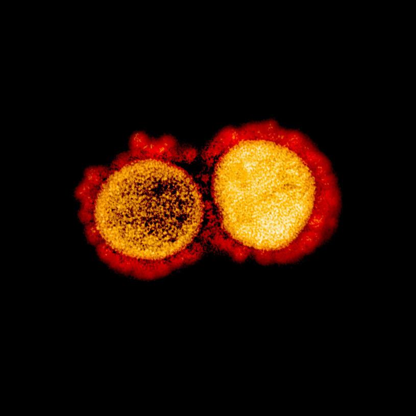 Koronawirus pod mikroskopem /HANDOUT/AFP /East News