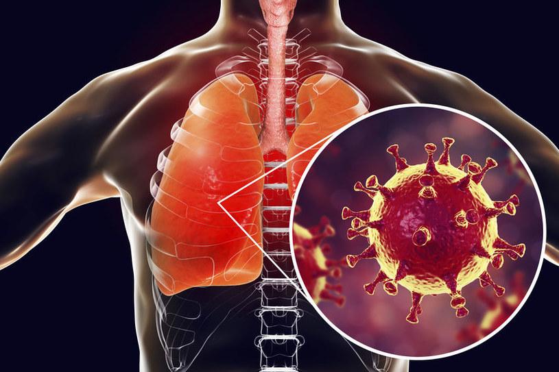 Koronawirus sprzyja rozwojowi zatoru płucnego /123RF/PICSEL