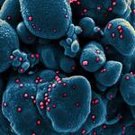Koronawirus - tak wygląda SARS-CoV-2