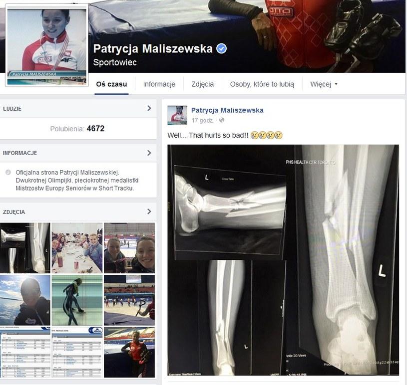 Koszmarna kontuzja Patrycji Maliszewskiej. Oto zdjęcie złamanej nogi, jakie zamieściła na Facebooku /
