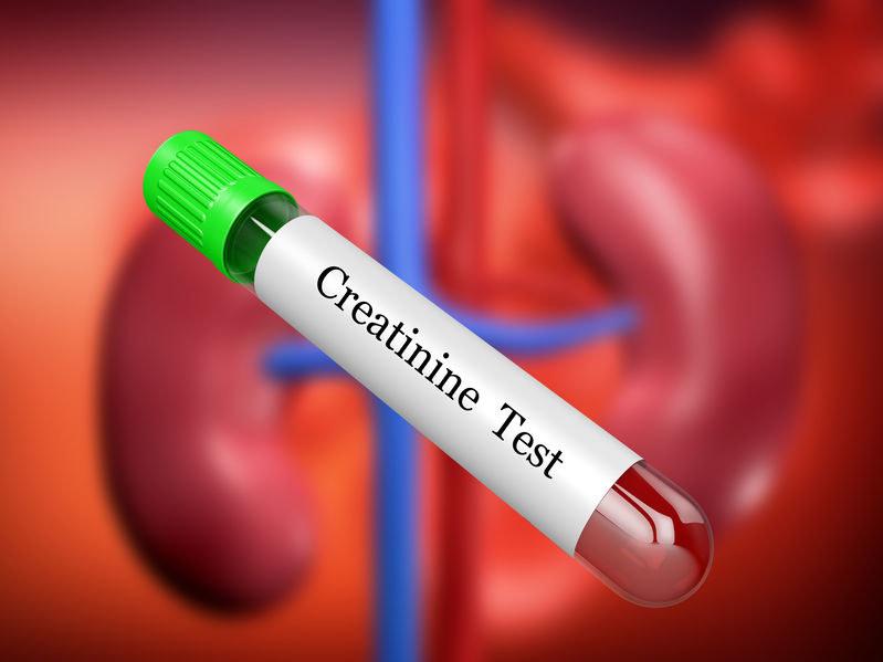 Kreatynina to związek chemiczny wydalany przez nerki /123RF/PICSEL