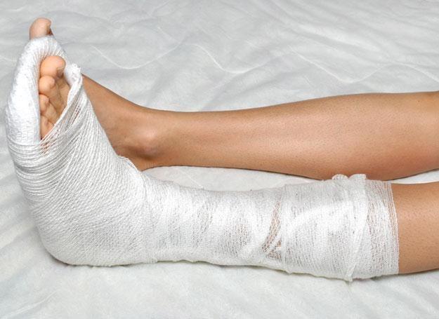 Kruche kości sprawiają, że złamania przytrafiają się znacznie częściej /© Panthermedia