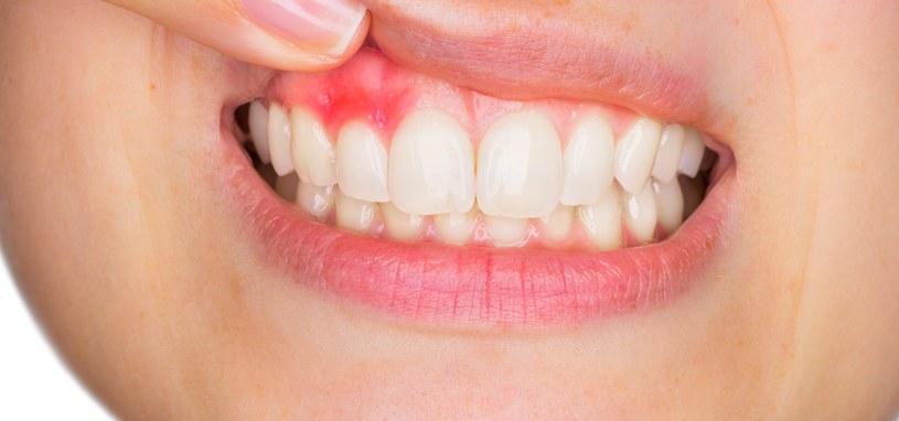 Krwawienie dziąseł ma wiele przyczyn /123RF/PICSEL