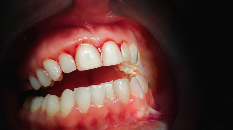 Krwawienie dziąseł to niepokojący system /123RF/PICSEL