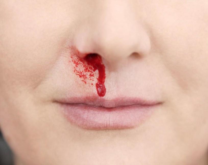 krwawienie z nosa /© Photogenica