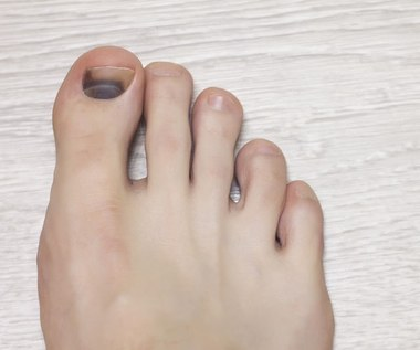 Krwiak pod paznokciem: Kiedy może być niebezpieczny?