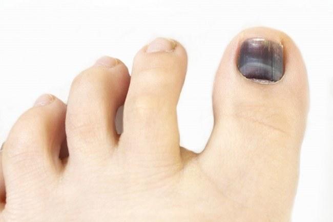 krwiak pod paznokciem leczenie /© Photogenica