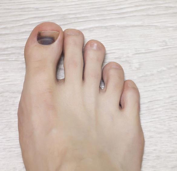 Krwiak pod paznokciem /©123RF/PICSEL