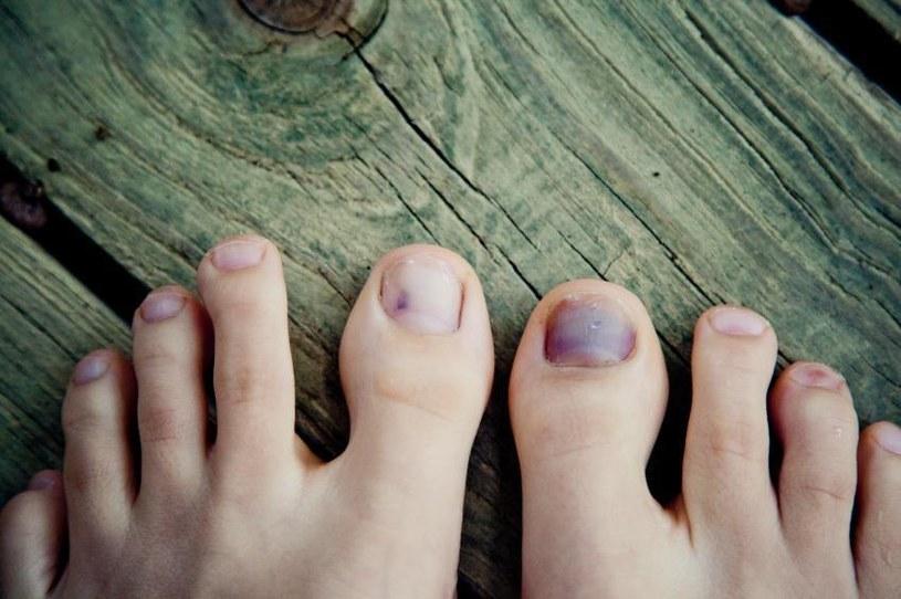 krwiak pod paznokciem /© Photogenica