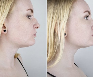 Krzywa przegroda nosowa - objawy, operacja