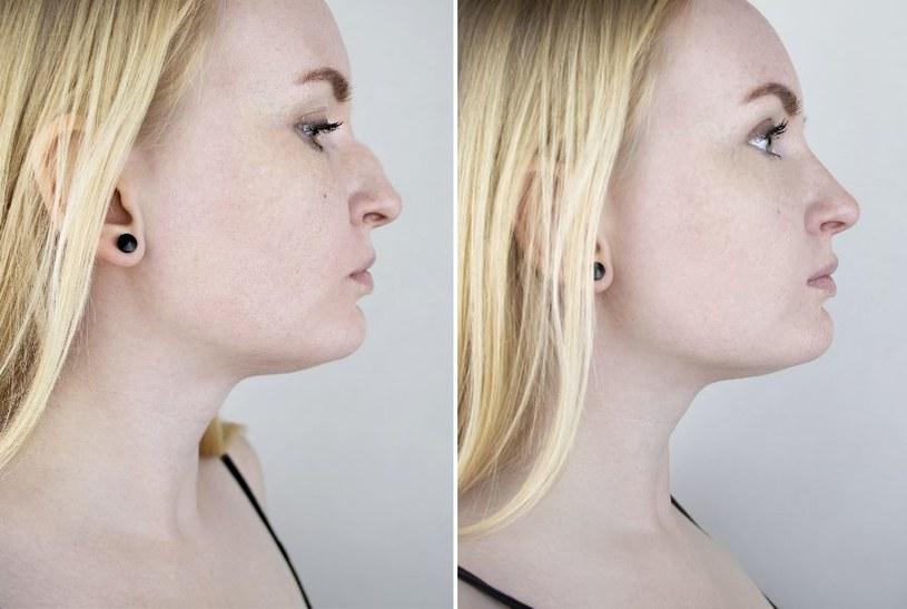 Krzywa przegroda nosowa wymaga zabiegu /123RF/PICSEL