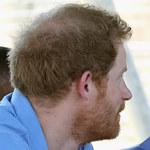 Książę Harry zaczyna łysieć!
