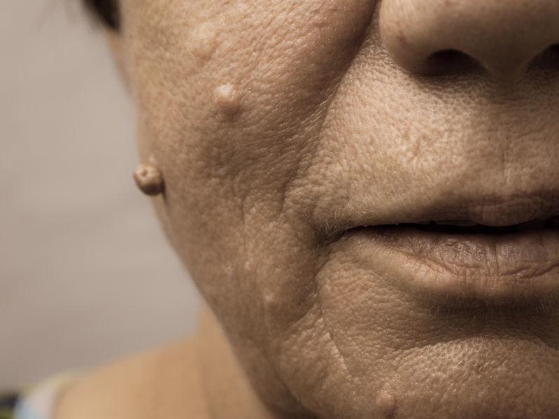 Które zmiany na skórze mogą być niebezpieczne? /©123RF/PICSEL