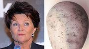 Kwaśniewska: Byłam istnym kartoflem