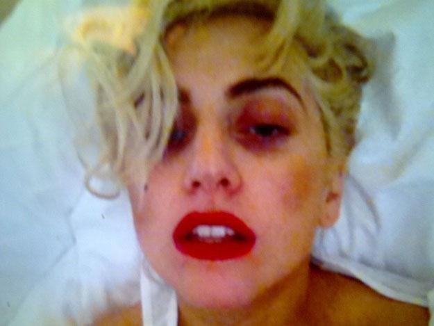 Lady Gaga wciąż odczuwa skutki uderzenia /
